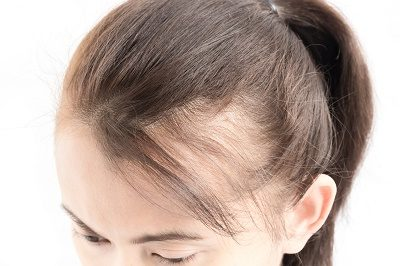 Female Hair Loss Men S Health Atlanta